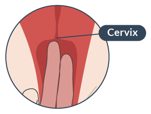 locating-your-cervix
